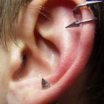 Uši 101